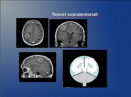 Intracerebral tumors