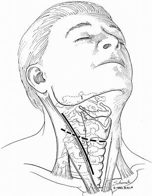 Anterior cervical microdiscectomy