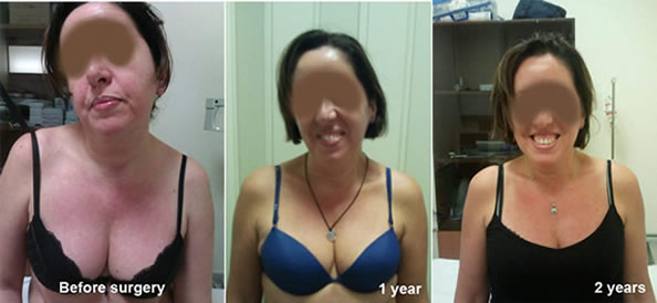 A case study with a patient photographed before surgery, and then after undergoing surgery at one and two year follow -up . Pleasee note the progressive improvement and how properative kypho-scoliotic deformity were completely gone at two years follow-up.