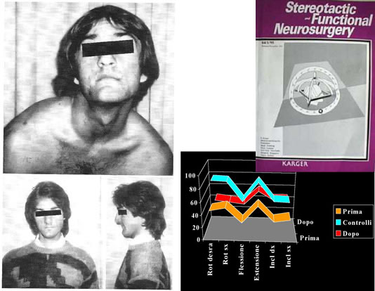 The picture shows one of the erliest cases, about 30 years ago. To the bottom right, in the same frame,the diagram shows how the neck motility improve after surgery (red line) and is similar to normal neck motility (blue line). The other line (ocher), shows the preoperative range of motion. This study has been shown on the cover of a prestigious journal: Stereotactic and Functional Neurosurgery.